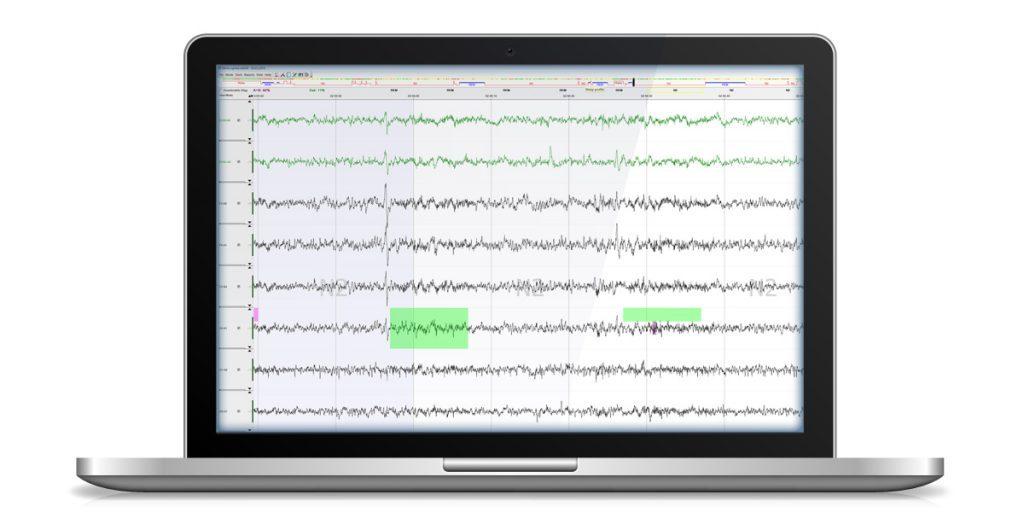 EEG View