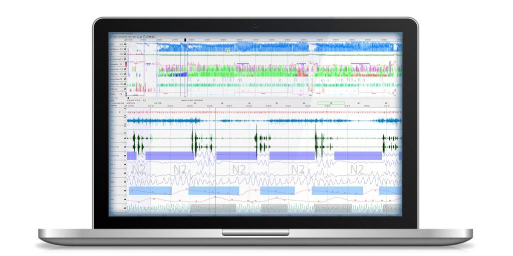 respiratory view analysis + raw data