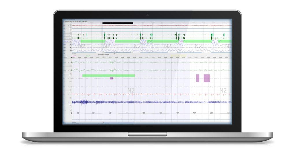 Dual time base Respiratory and EEG
